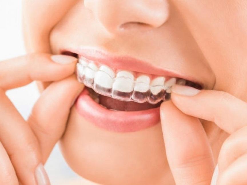 Comodidad de la ortodoncia invisible