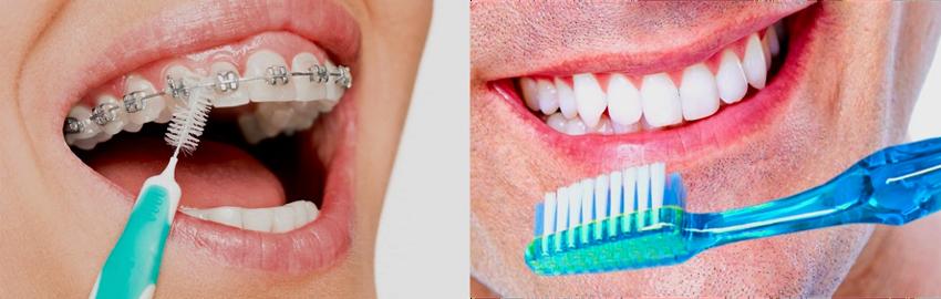 Cómo es la higiene con la ortodoncia invisible