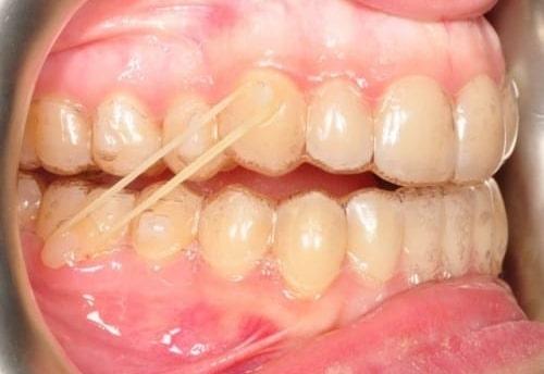 ¿Qué son los elásticos de ortodoncia?